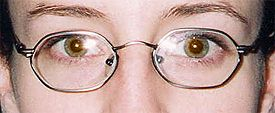 Accommodative Esotropia with corrective glasses